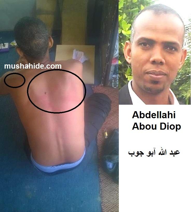صورة اثار التعذيب على عبد الله آبو جوب في توقيف سابق مايو 2016